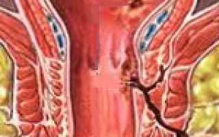 Чем лечить свищ прямой кишки