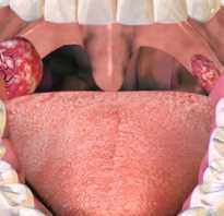 Санация лакун небных миндалин