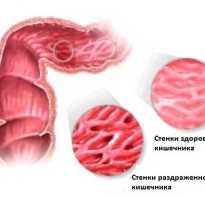 Успокоительное для кишечника