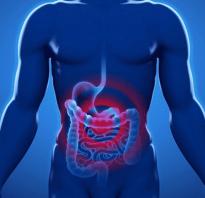 Признаки перитонита кишечника