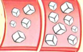 Хронический панкреатит и диабет
