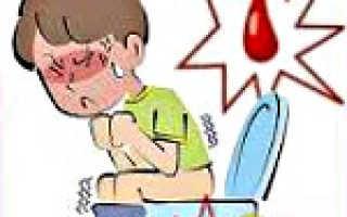 Спазмы прямой кишки симптомы