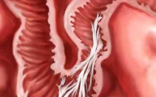 Спайки кишечника операция видео