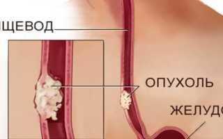 Рак желудка и пищевода симптомы