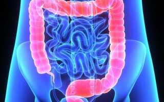 Чем лечат воспаление кишечника
