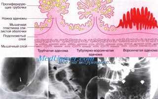 Форум полипы толстого кишечника