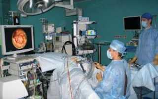 Эндоскопия толстого кишечника