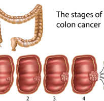 Чтобы не было рака кишечника