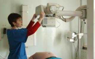 Рентген желудка при гастрите