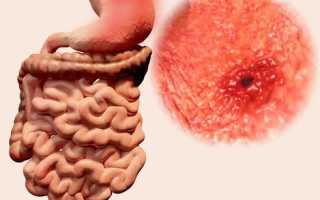 Язвенные заболевания кишечника