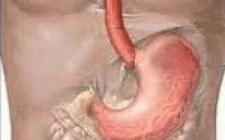Синдромы при остром гастрите