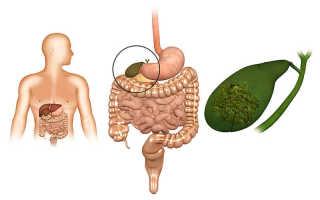 Причины болезни желчного пузыря