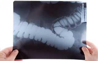 Что выявляет рентген кишечника