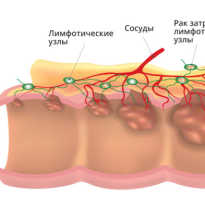Симптомы рака кишки у женщины