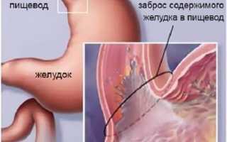 Схема лечения гэрб с эзофагитом