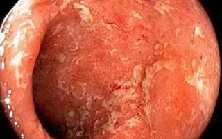 Профилактика колита кишечника
