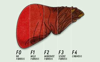 Фиброз f0 f1 по шкале metavir