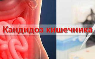 Язык при кандидозе кишечника
