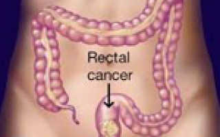 Раковая опухоль прямой кишки