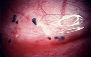 Эндометриоз кишечника картинки