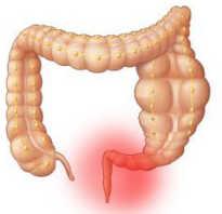 Чем лечить проктит кишечника