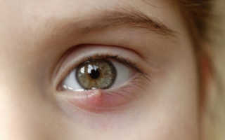У ребенка болит глаз и тошнит