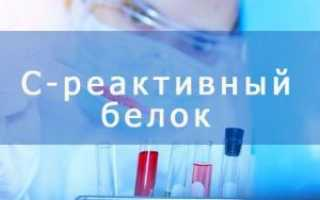 Срб анализ крови что означает