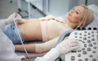Узи кишечника у новорожденных