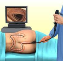 Сигмоскопия кишечника что это