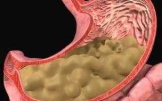 Что означает слизь в желудке