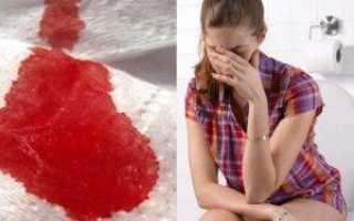 Появление крови при дефекации