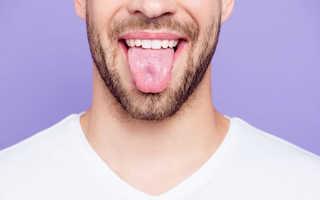От чего язык белый у человека