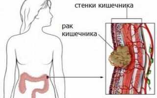 Что такое онкология кишечника