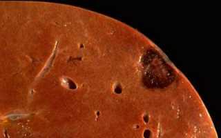 Чем лечить гемангиому печени