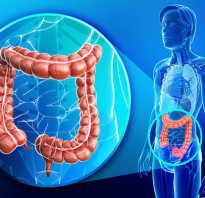 Удлинение кишечника симптомы